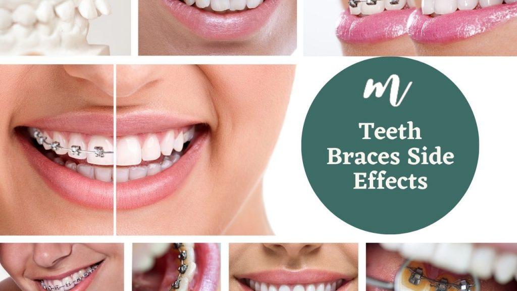 teeth braces side effects