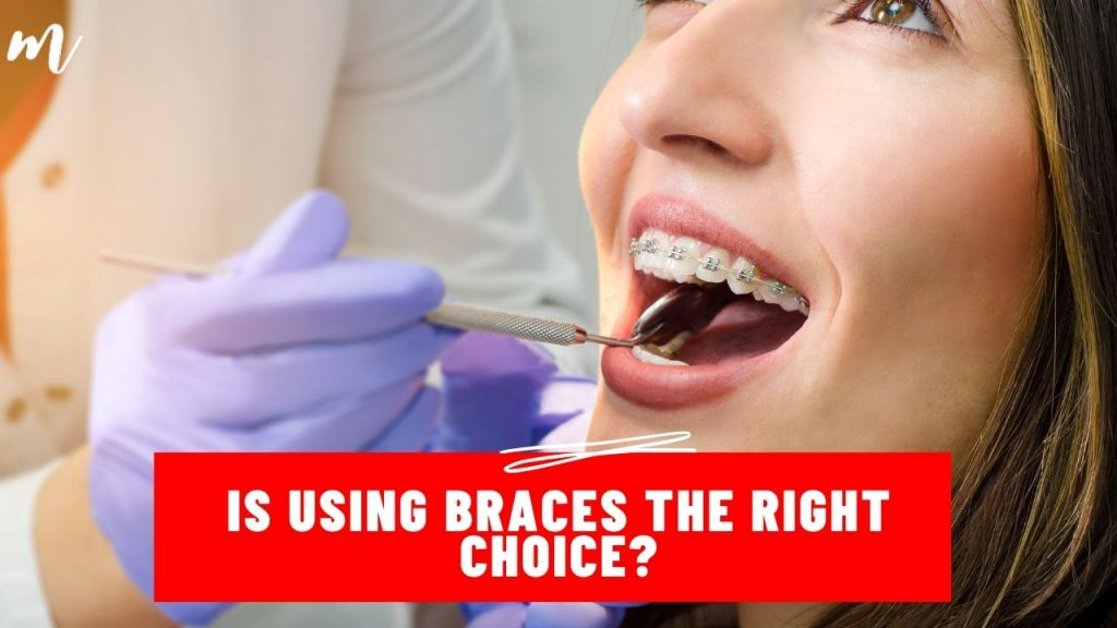 Is using braces the right choice